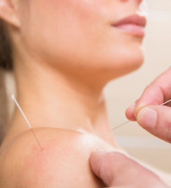 Akupunktur Centret